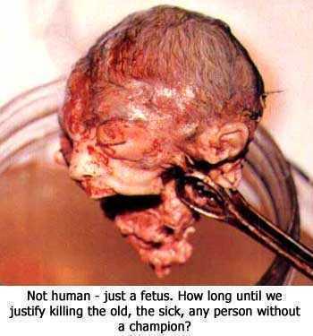abortion06