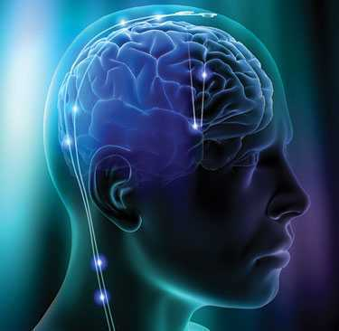Developed-brain-implant-claimed-by-scientists