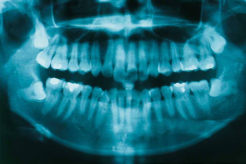 Radiografiile dentare si tumorile cerebrale/ Vaslui: apa bogata in nitraţi